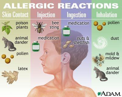 allergic reations
