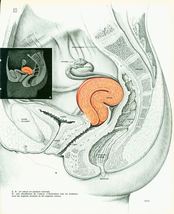 retroverted uterus 1975 print art